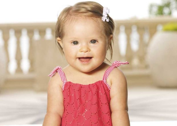 Baby girl w down syndrome is dc kids model faux society - Model fotobaby ...